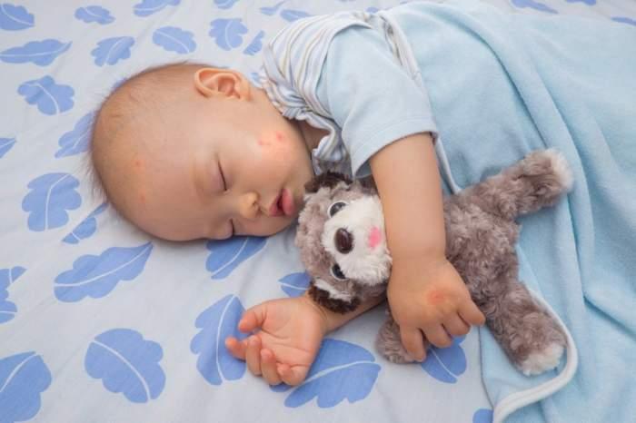 Профілактика укусів комарів і мошки у дітей. Як захистити свою дитину влітку від комарів? як захистити дитину 6 місяців від комарів