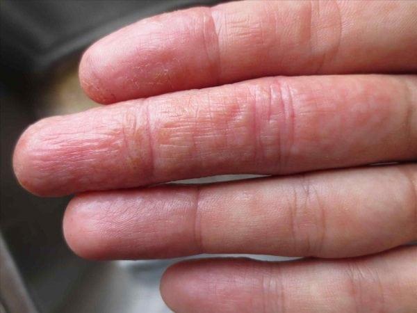 Як зняти з рани клей бф. Медичний хірургічний клей( біоклей), показання до застосування