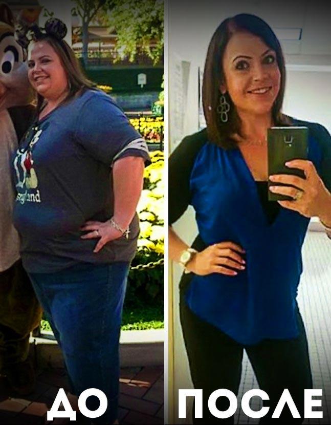 Успіхи в схудненні. Три реальні історії схуднення